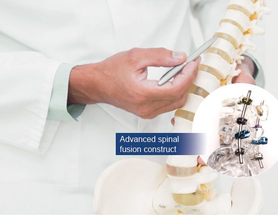 dr michael wong spinal fusion surgery