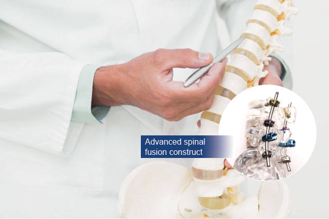 dr michael wong spinal fusion surgery